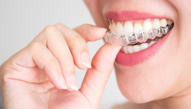 יישור שיניים בלתי נראה בירושלים