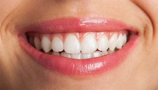 הלבנת שיניים - רופא שיניים ירושלים