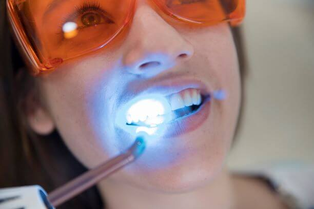laser assisted teeth whitening