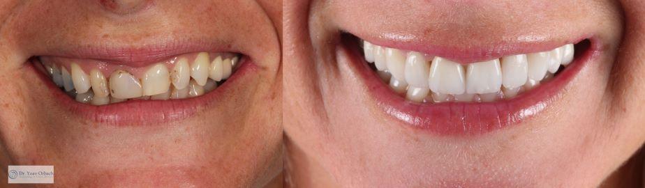 הלבנת שיניים בירושלים