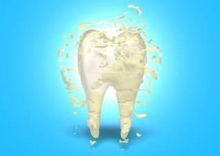 שן צהובה בגלל פלאק