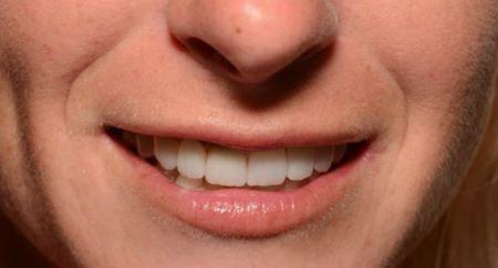 white teeth jerusalem