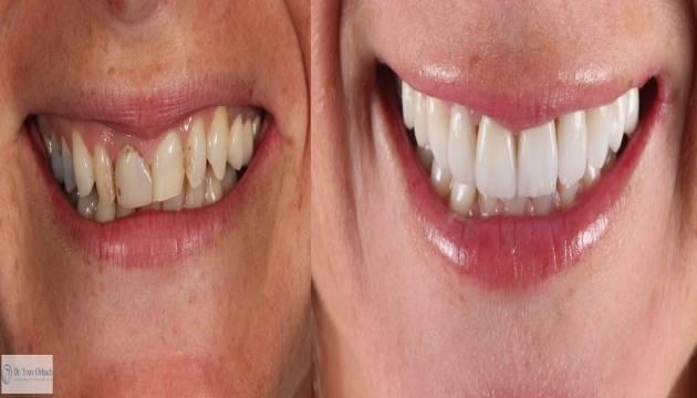 כל מה שצריך לדעת על שיניים צהובות
