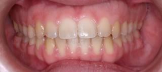 יישור שיניים שקוף - אחרי
